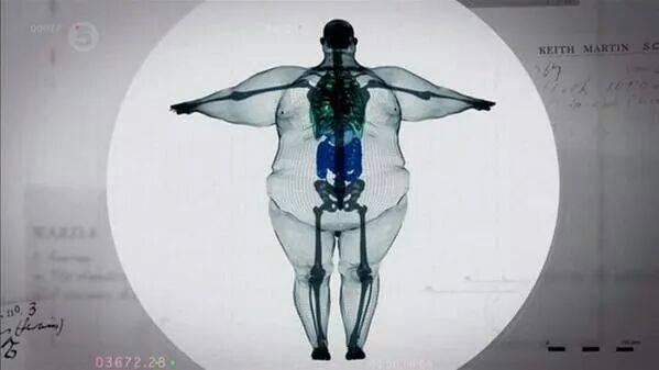 380 kg